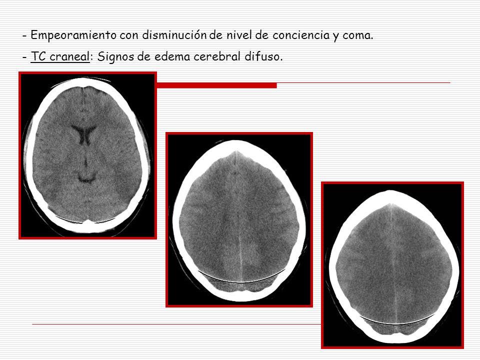- Empeoramiento con disminución de nivel de conciencia y coma. - TC craneal: Signos de edema cerebral difuso.
