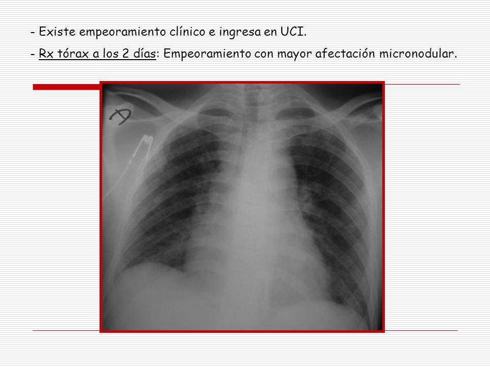 - Existe empeoramiento clínico e ingresa en UCI. - Rx tórax a los 2 días: Empeoramiento con mayor afectación micronodular.