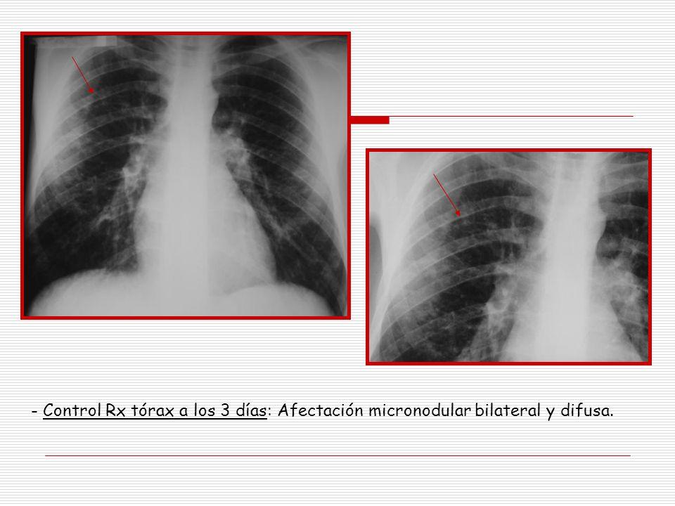 - Control Rx tórax a los 3 días: Afectación micronodular bilateral y difusa.