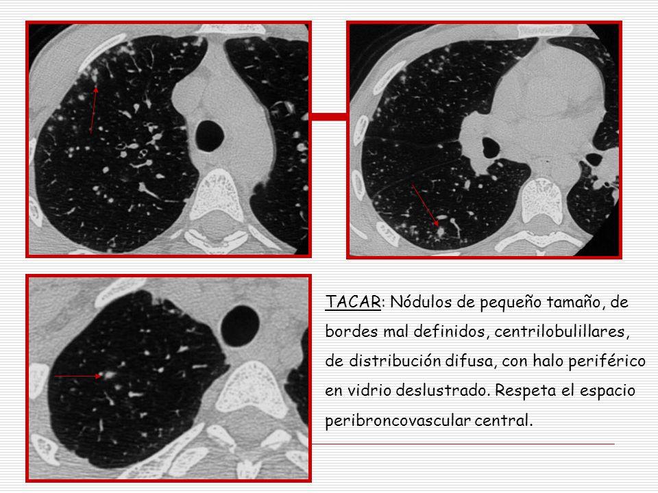 TACAR: Nódulos de pequeño tamaño, de bordes mal definidos, centrilobulillares, de distribución difusa, con halo periférico en vidrio deslustrado. Resp