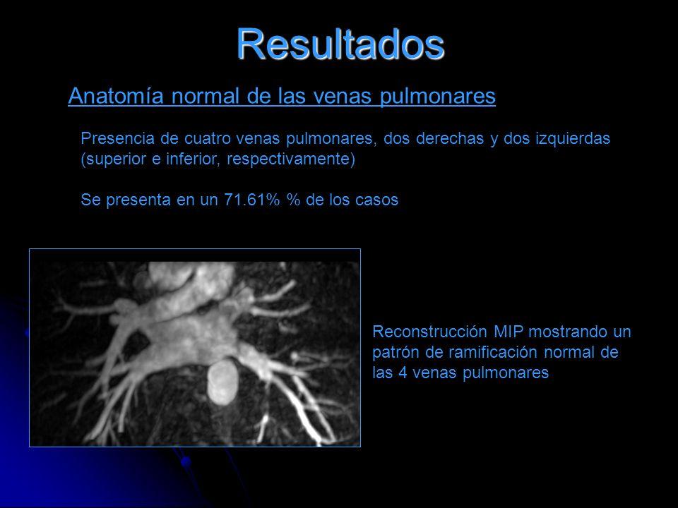 Resultados Anatomía normal de las venas pulmonares Presencia de cuatro venas pulmonares, dos derechas y dos izquierdas (superior e inferior, respectiv