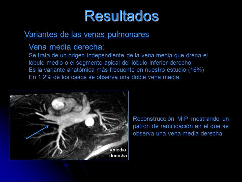 Resultados Variantes de las venas pulmonares Vena media derecha: Se trata de un origen independiente de la vena media que drena el lóbulo medio o el s