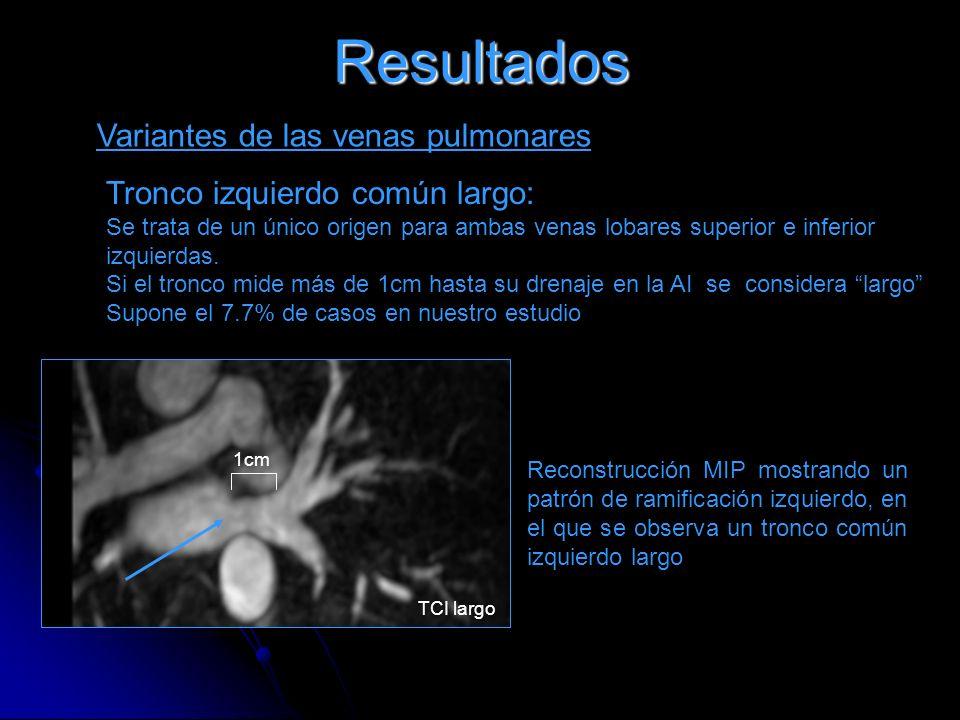 Resultados Variantes de las venas pulmonares Tronco izquierdo común largo: Se trata de un único origen para ambas venas lobares superior e inferior iz
