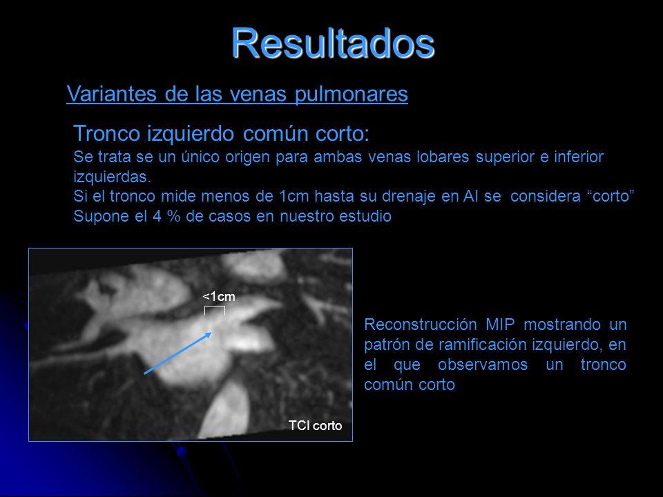 Resultados Variantes de las venas pulmonares Tronco izquierdo común corto: Se trata se un único origen para ambas venas lobares superior e inferior iz