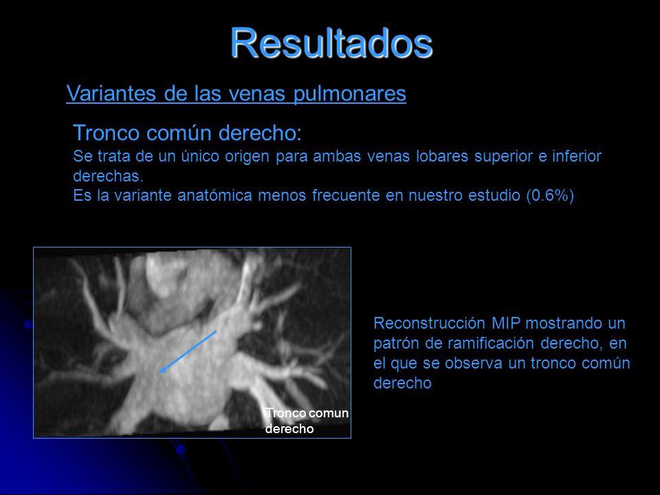 Resultados Variantes de las venas pulmonares Tronco común derecho: Se trata de un único origen para ambas venas lobares superior e inferior derechas.