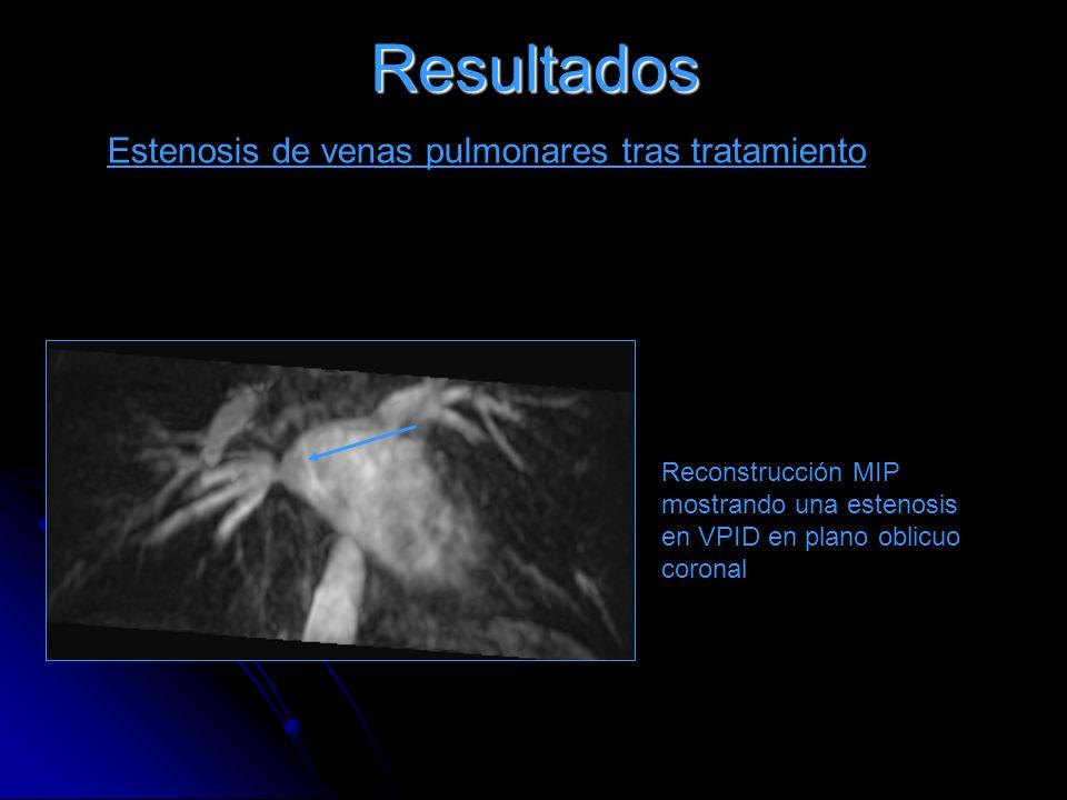 Resultados Estenosis de venas pulmonares tras tratamiento Reconstrucción MIP mostrando una estenosis en VPID en plano oblicuo coronal