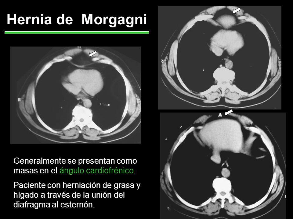 Hernia de Morgagni Generalmente se presentan como masas en el ángulo cardiofrénico. Paciente con herniación de grasa y hígado a través de la unión del