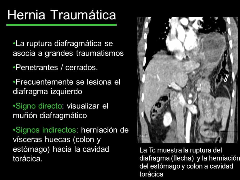 Hernia Traumática La ruptura diafragmática se asocia a grandes traumatismos Penetrantes / cerrados. Frecuentemente se lesiona el diafragma izquierdo S