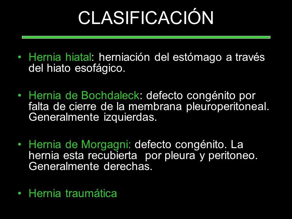 CLASIFICACIÓN Hernia hiatal: herniación del estómago a través del hiato esofágico. Hernia de Bochdaleck: defecto congénito por falta de cierre de la m