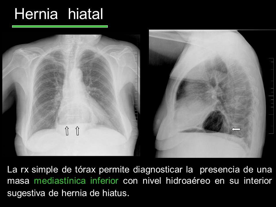Hernia hiatal La rx simple de tórax permite diagnosticar la presencia de una masa mediastínica inferior con nivel hidroaéreo en su interior sugestiva
