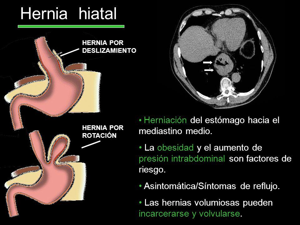 Hernia hiatal HERNIA POR DESLIZAMIENTO HERNIA POR ROTACIÓN Herniación del estómago hacia el mediastino medio. La obesidad y el aumento de presión intr