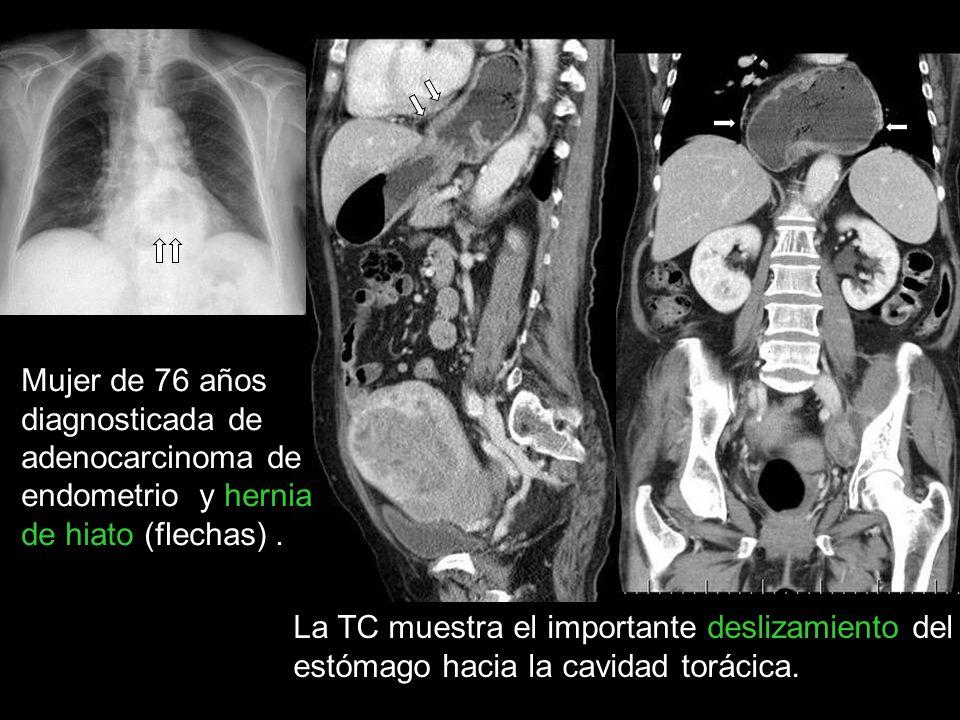 Mujer de 76 años diagnosticada de adenocarcinoma de endometrio y hernia de hiato (flechas). La TC muestra el importante deslizamiento del estómago hac