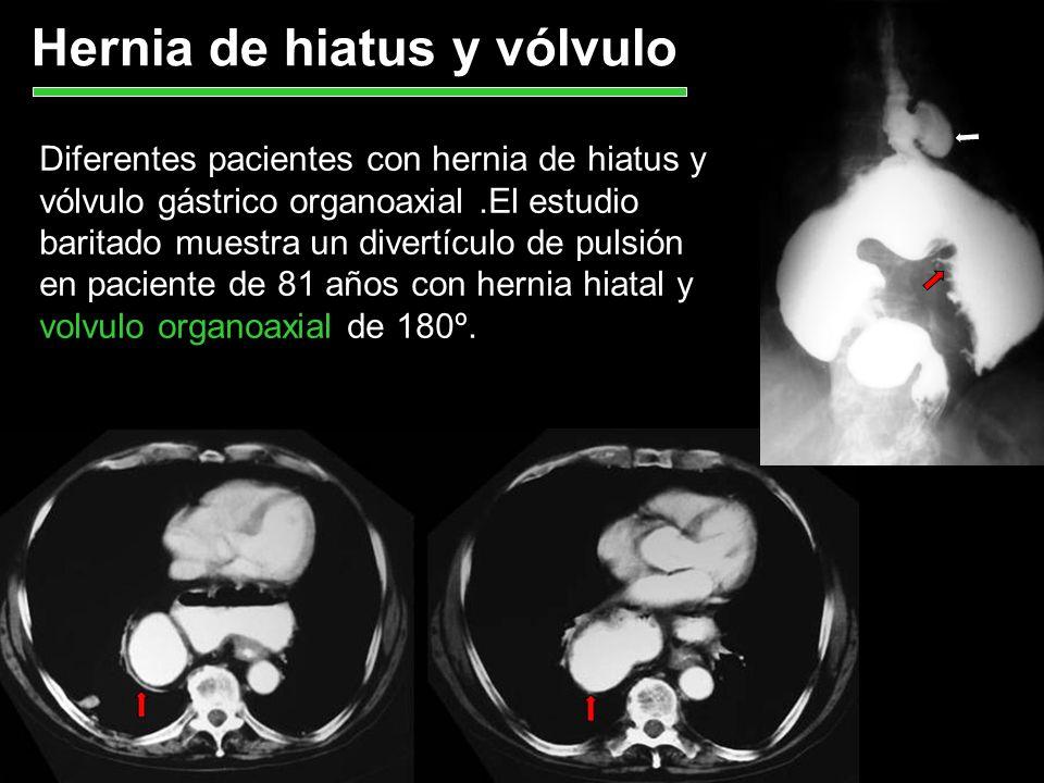 Hernia de hiatus y vólvulo Diferentes pacientes con hernia de hiatus y vólvulo gástrico organoaxial.El estudio baritado muestra un divertículo de puls