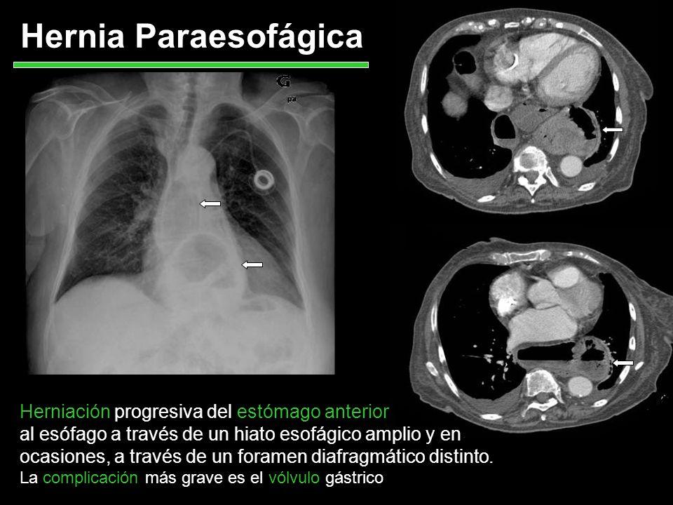 Hernia Paraesofágica Herniación progresiva del estómago anterior al esófago a través de un hiato esofágico amplio y en ocasiones, a través de un foram