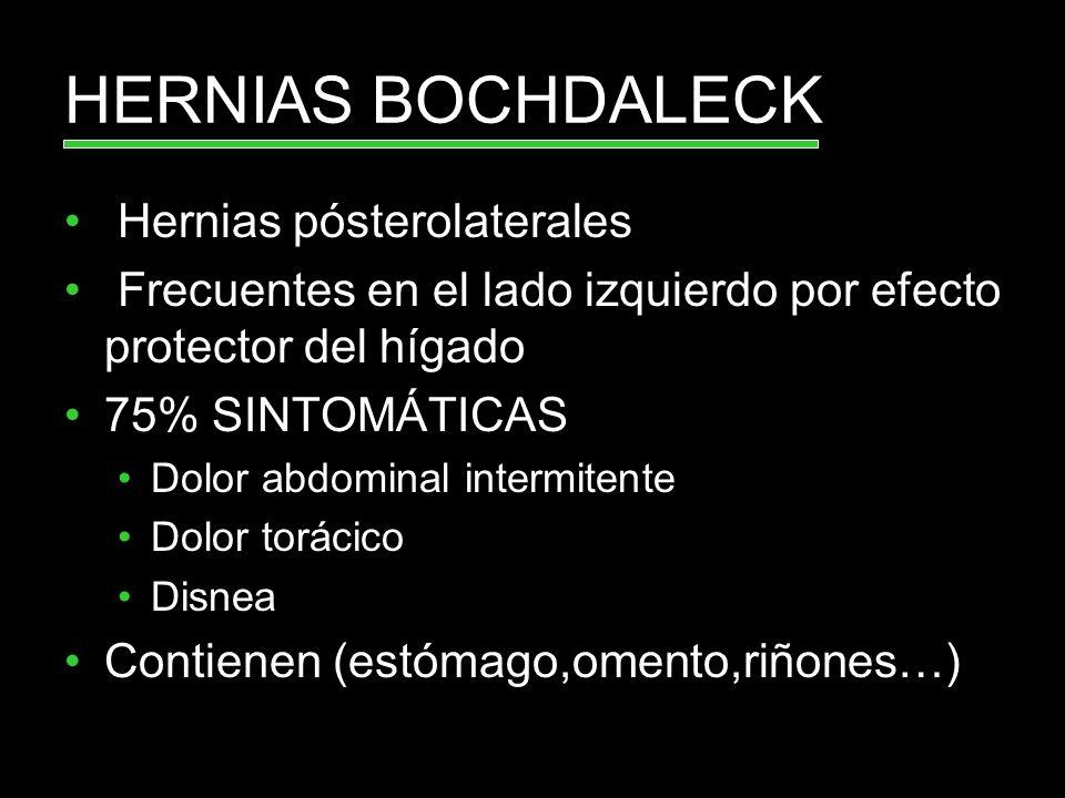 Hernias pósterolaterales Frecuentes en el lado izquierdo por efecto protector del hígado 75% SINTOMÁTICAS Dolor abdominal intermitente Dolor torácico