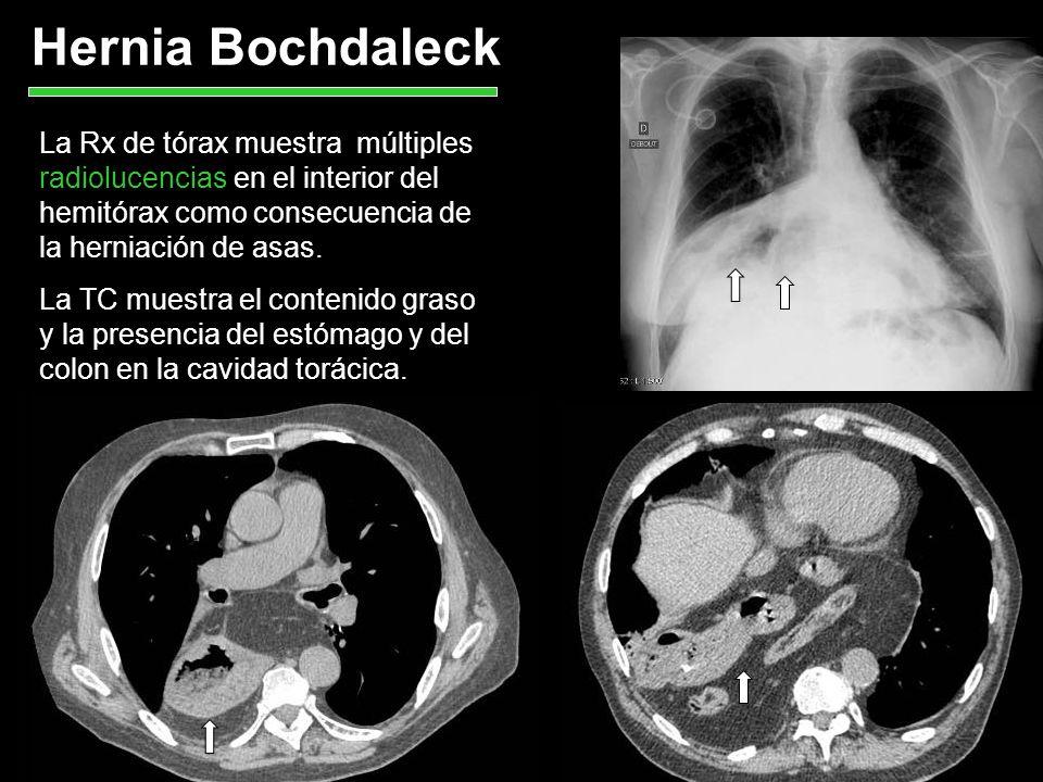 Hernia Bochdaleck La Rx de tórax muestra múltiples radiolucencias en el interior del hemitórax como consecuencia de la herniación de asas. La TC muest