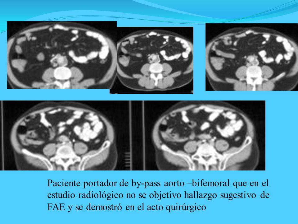 Paciente portador de by-pass aorto –bifemoral que en el estudio radiológico no se objetivo hallazgo sugestivo de FAE y se demostró en el acto quirúrgi