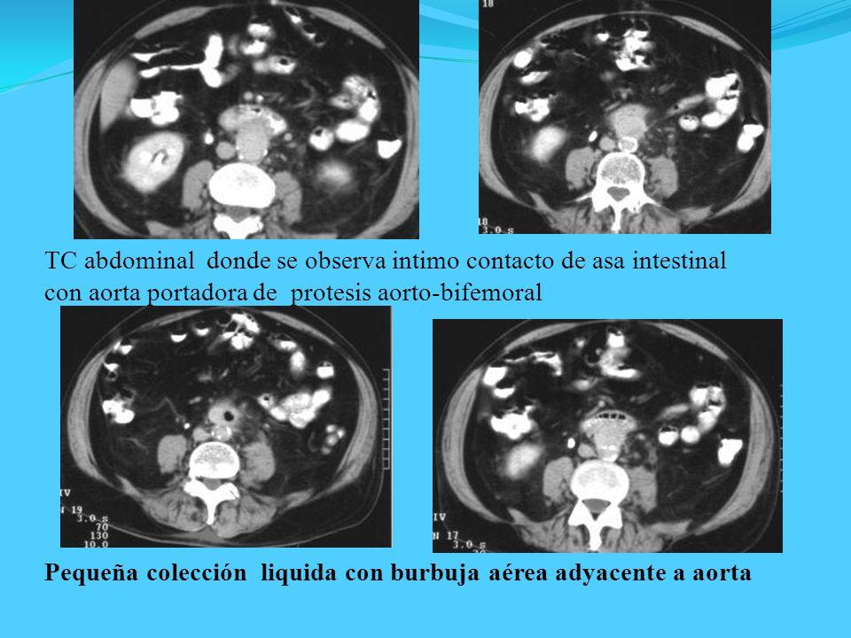 TC abdominal donde se observa intimo contacto de asa intestinal con aorta portadora de protesis aorto-bifemoral Pequeña colección liquida con burbuja
