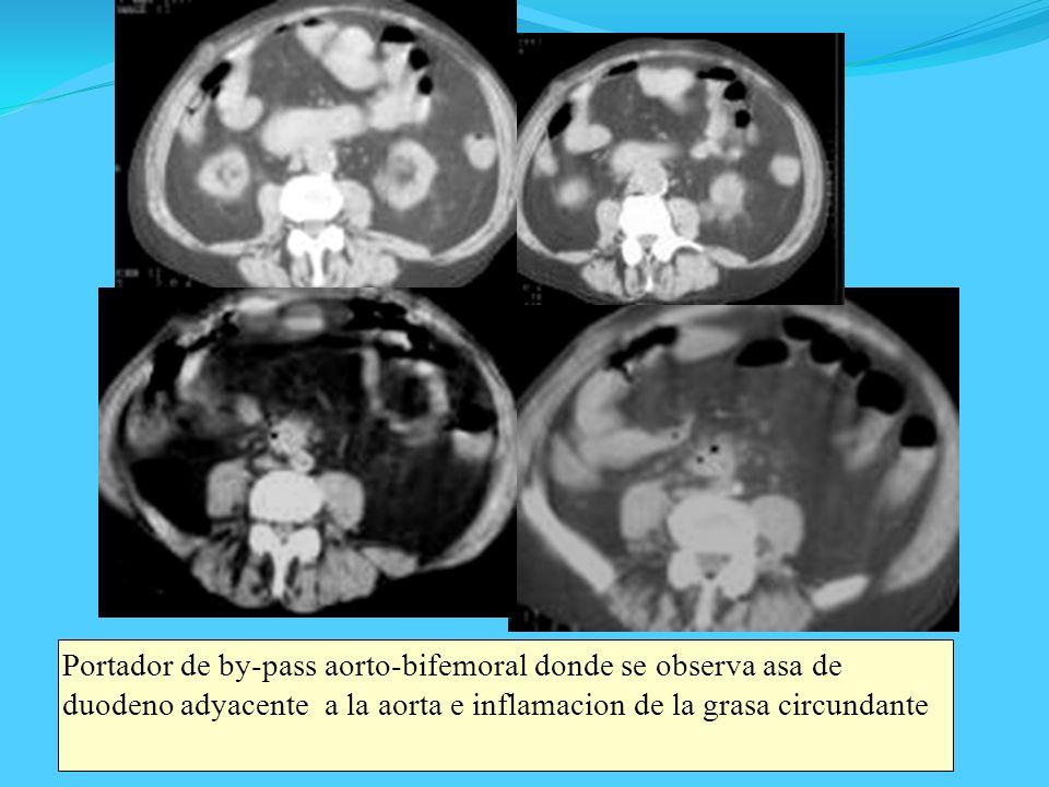 Portador de by-pass aorto-bifemoral donde se observa asa de duodeno adyacente a la aorta e inflamacion de la grasa circundante