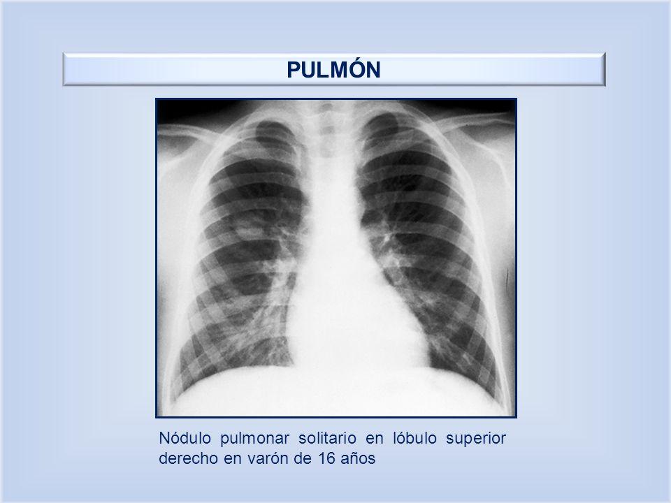 PULMÓN Nódulo pulmonar solitario en lóbulo superior derecho en varón de 16 años