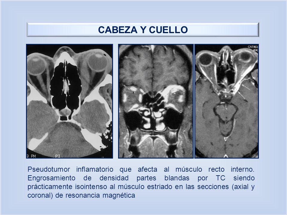 CABEZA Y CUELLO Pseudotumor inflamatorio que afecta al músculo recto interno. Engrosamiento de densidad partes blandas por TC siendo prácticamente iso