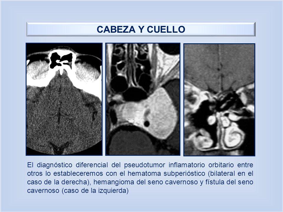 CABEZA Y CUELLO El diagnóstico diferencial del pseudotumor inflamatorio orbitario entre otros lo estableceremos con el hematoma subperióstico (bilater