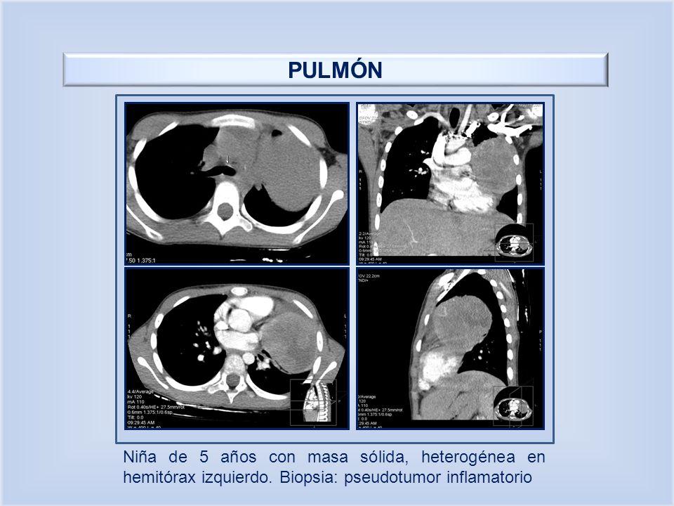 PULMÓN Niña de 5 años con masa sólida, heterogénea en hemitórax izquierdo. Biopsia: pseudotumor inflamatorio