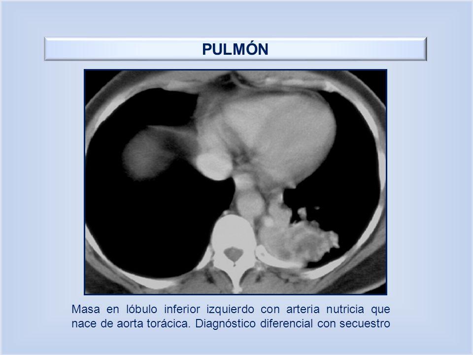 PULMÓN Masa en lóbulo inferior izquierdo con arteria nutricia que nace de aorta torácica. Diagnóstico diferencial con secuestro