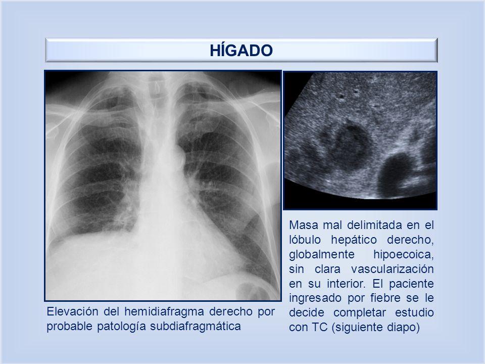 HÍGADO Masa mal delimitada en el lóbulo hepático derecho, globalmente hipoecoica, sin clara vascularización en su interior. El paciente ingresado por