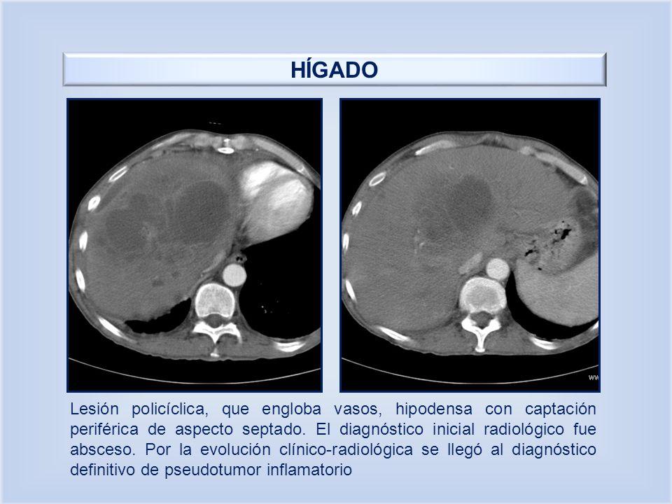HÍGADO Lesión policíclica, que engloba vasos, hipodensa con captación periférica de aspecto septado. El diagnóstico inicial radiológico fue absceso. P