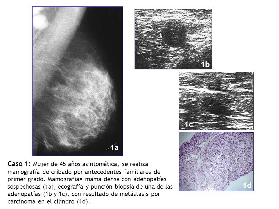 Caso 1: Mujer de 45 años asintomática, se realiza mamografía de cribado por antecedentes familiares de primer grado. Mamografía= mama densa con adenop