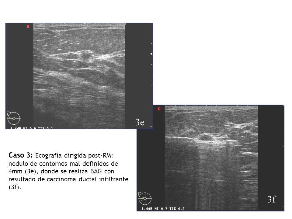 Caso 3: Ecografía dirigida post-RM: nodulo de contornos mal definidos de 4mm (3e), donde se realiza BAG con resultado de carcinoma ductal infiltrante