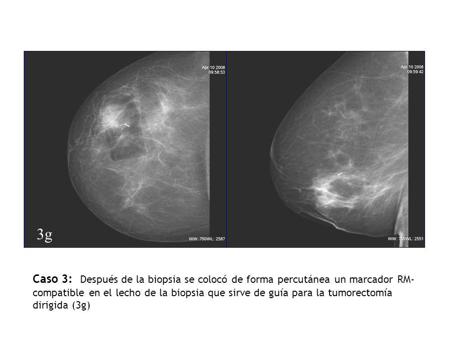 Caso 3: Después de la biopsia se colocó de forma percutánea un marcador RM- compatible en el lecho de la biopsia que sirve de guía para la tumorectomí
