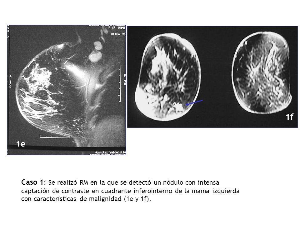 1e 1f Caso 1 : Se realizó RM en la que se detectó un nódulo con intensa captación de contraste en cuadrante inferointerno de la mama izquierda con car