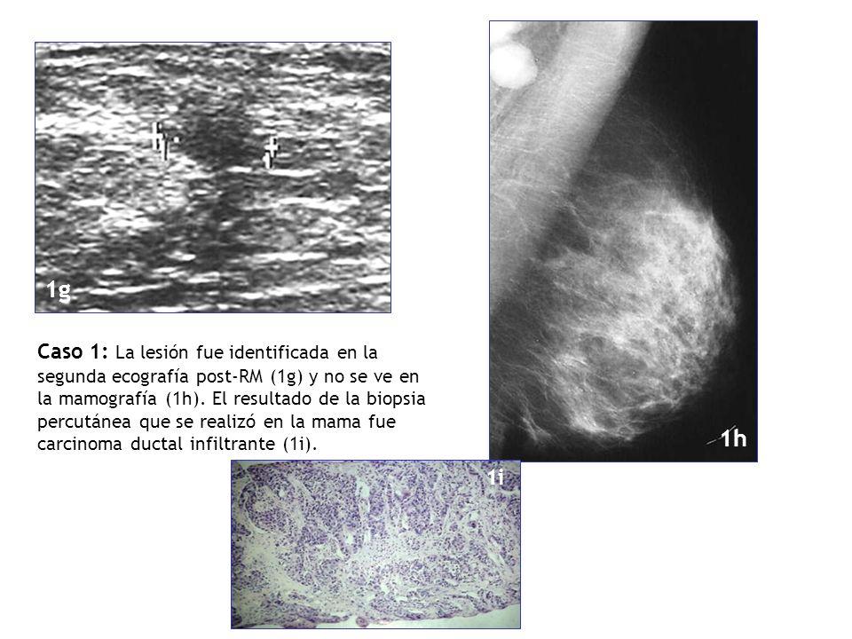 Caso 1: La lesión fue identificada en la segunda ecografía post-RM (1g) y no se ve en la mamografía (1h). El resultado de la biopsia percutánea que se