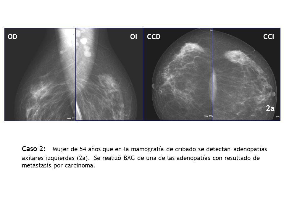 Caso 2: Mujer de 54 años que en la mamografía de cribado se detectan adenopatías axilares izquierdas (2a). Se realizó BAG de una de las adenopatías co