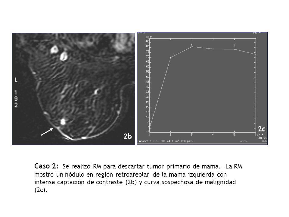 Caso 2: Se realizó RM para descartar tumor primario de mama. La RM mostró un nódulo en región retroareolar de la mama izquierda con intensa captación
