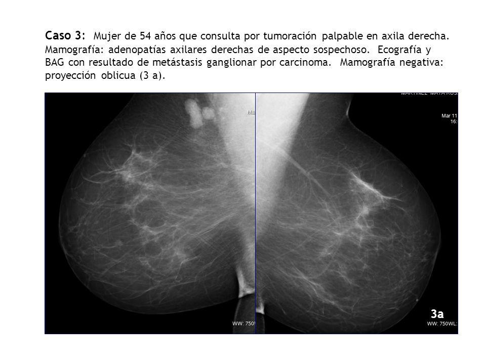 CCDCCI Caso 3: Mujer de 54 años que consulta por tumoración palpable en axila derecha. Mamografía: adenopatías axilares derechas de aspecto sospechoso