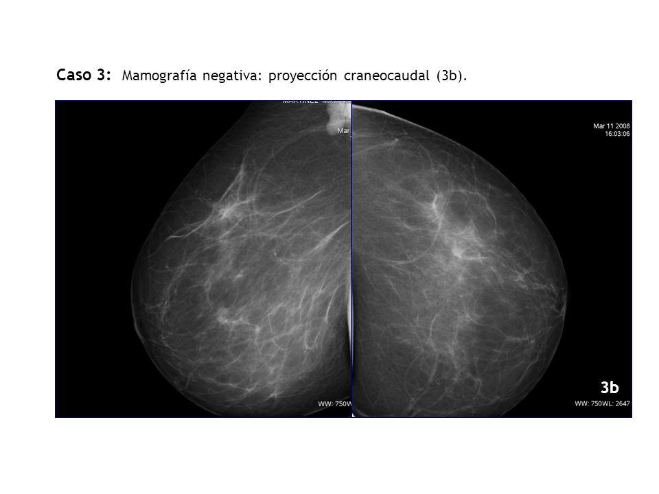 ODOI 3b Caso 3: Mamografía negativa: proyección craneocaudal (3b). 3b