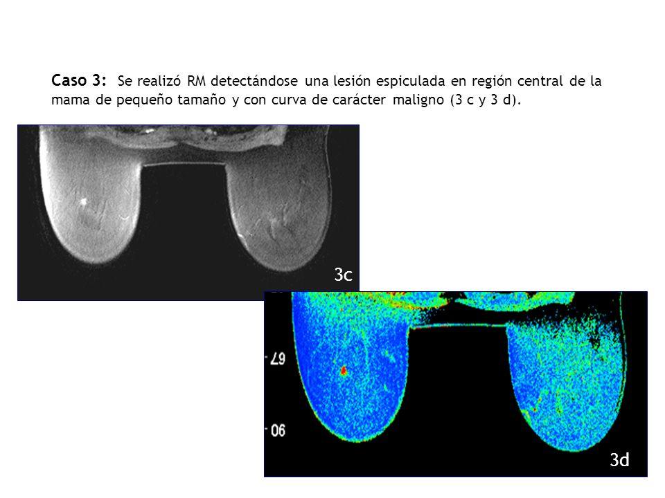 Caso 3: Se realizó RM detectándose una lesión espiculada en región central de la mama de pequeño tamaño y con curva de carácter maligno (3 c y 3 d). 3