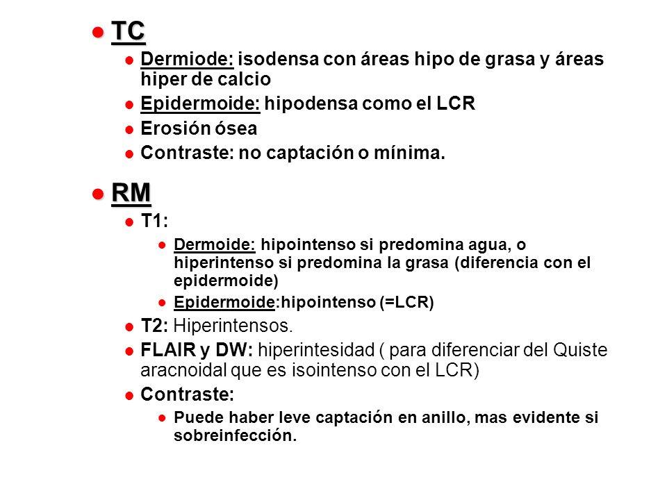 TC TC Dermiode: isodensa con áreas hipo de grasa y áreas hiper de calcio Epidermoide: hipodensa como el LCR Erosión ósea Contraste: no captación o mín