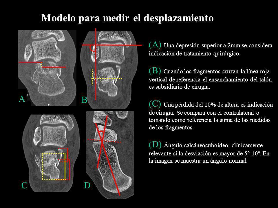 Modelo para medir el desplazamiento A C (A) Una depresión superior a 2mm se considera indicación de tratamiento quirúrgico. (B) Cuando los fragmentos