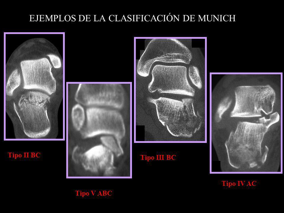 EJEMPLOS DE LA CLASIFICACIÓN DE MUNICH Tipo II BC Tipo V ABC Tipo IV AC Tipo III BC