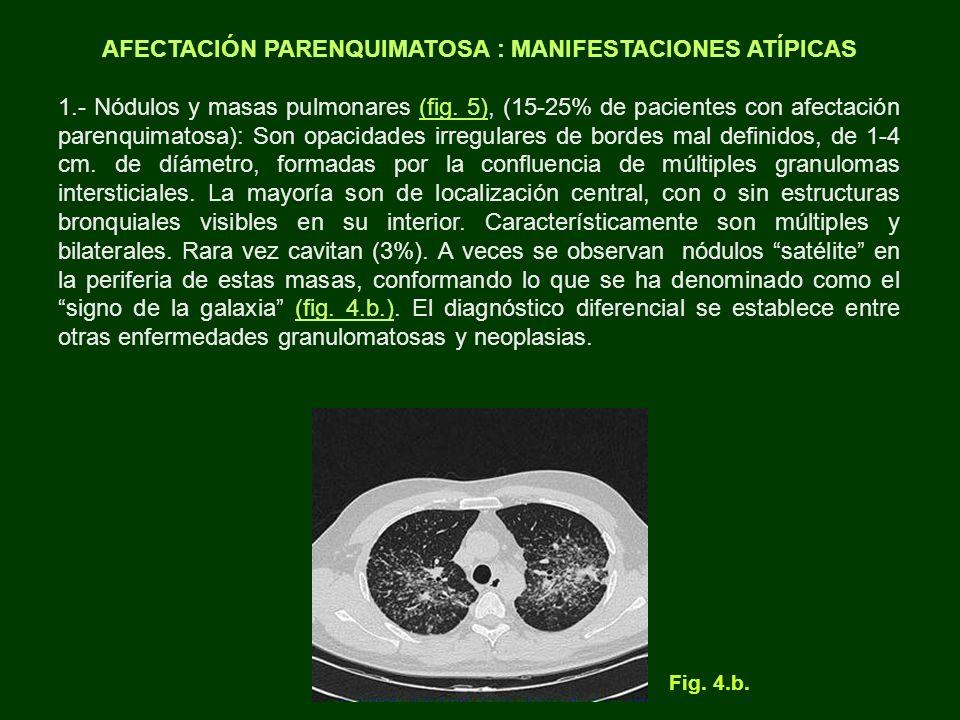 AFECTACIÓN PARENQUIMATOSA : MANIFESTACIONES ATÍPICAS 1.- Nódulos y masas pulmonares (fig. 5), (15-25% de pacientes con afectación parenquimatosa): Son