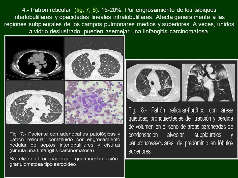 4.- Patrón reticular (fig. 7, 8): 15-20%. Por engrosamiento de los tabiques interlobulillares y opacidades lineales intralobulillares. Afecta generalm