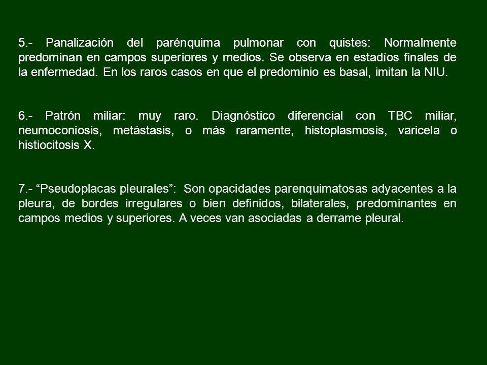 5.- Panalización del parénquima pulmonar con quistes: Normalmente predominan en campos superiores y medios. Se observa en estadíos finales de la enfer