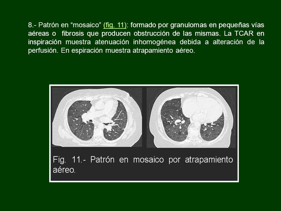 8.- Patrón en mosaico (fig. 11): formado por granulomas en pequeñas vías aéreas o fibrosis que producen obstrucción de las mismas. La TCAR en inspirac