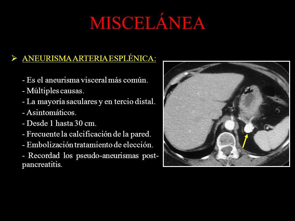 MISCELÁNEA ANEURISMA ARTERIA ESPLÉNICA: - Es el aneurisma visceral más común.