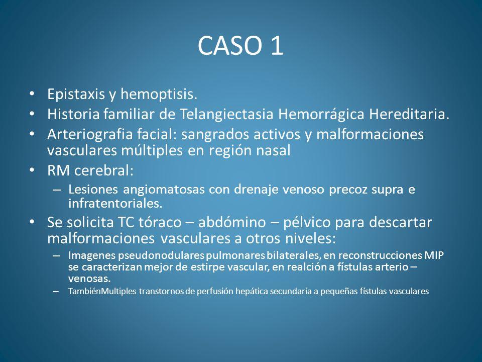 CASO 1 Epistaxis y hemoptisis. Historia familiar de Telangiectasia Hemorrágica Hereditaria. Arteriografia facial: sangrados activos y malformaciones v