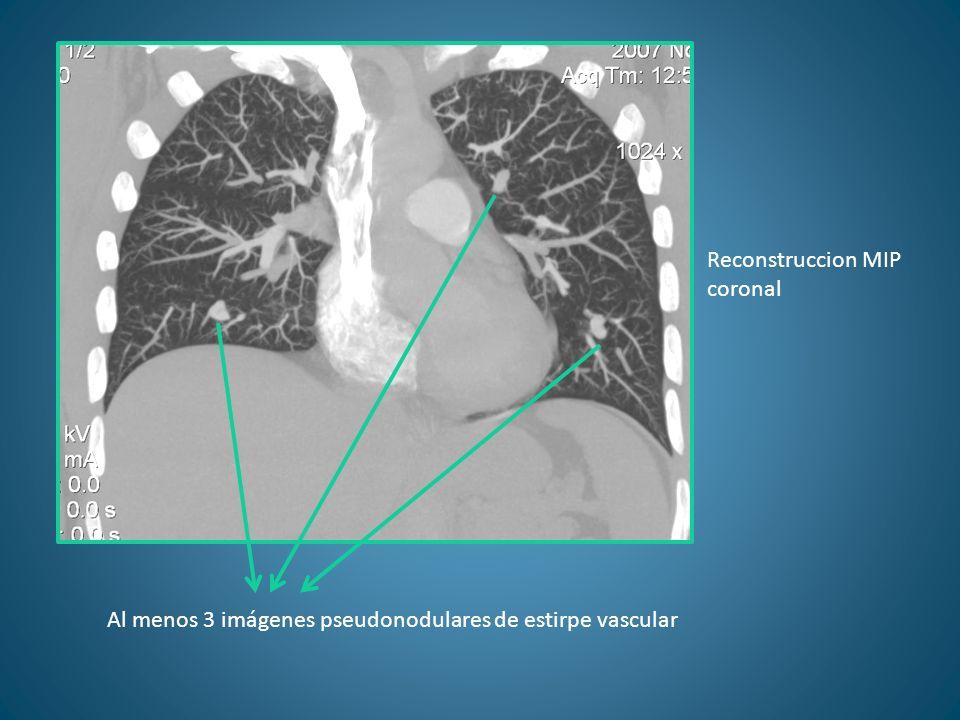 Reconstruccion MIP coronal Al menos 3 imágenes pseudonodulares de estirpe vascular